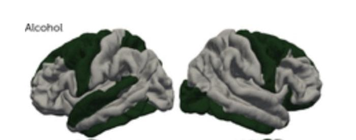 Does substance abuse cause brain changes?